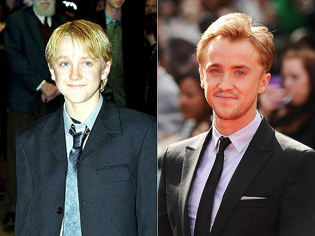 Antes e depois dos atores de Harry Potter (2/5)